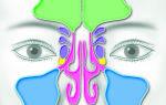 8 симптомов катарального синусита  и лечение чтобы не навредить
