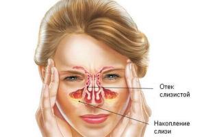 Прогревание носа при насморке, как и чем правильно греть?