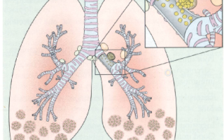 4 последствия редкого миллиарнного туберкулеза легких
