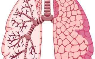 Как не заболеть компрессионным ателектазом лёгкого?