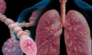 Хроническая обструктивная болезнь легких (ХОБЛ) — 4 стадии