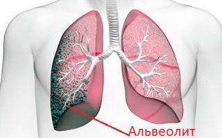 4 вида альвеолита легких — как определить и лечить болезнь?