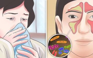 Правосторонний гайморит — 15 причин, симптомы и лечение