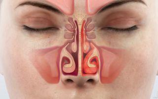 Гипертрофический ринит — причины, симптомы и лечения
