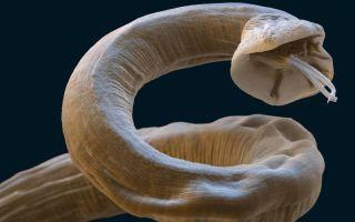 8 правил для защиты детей от паразитов. Спасите вашего ребёнка!