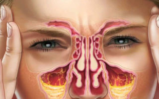 Чем отличается ринит от синусита: симптомы, лечение и последствия