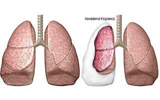 4 действия для неотложной помощи при спонтанном пневмотораксе