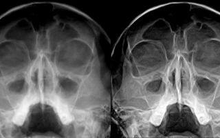 Как выглядит гайморит на рентгеновском снимке