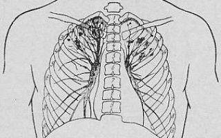 5 причин заражения очаговым туберкулёзом. Осторожно