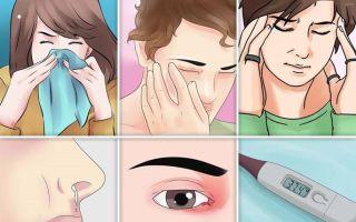 Что такое риносинусит и 11 его симптомов для разных форм