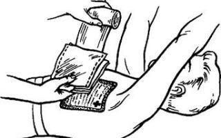 Как наложить окклюзионную повязку при открытом пневмотораксе?