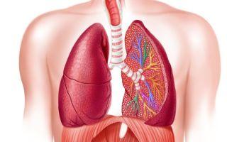 3 стадии пневмокониоза, какие симптомы и как лечить?