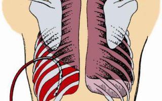 Коварная болезнь гемоторакс, что делать?