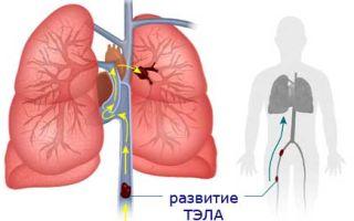 3 основных причины тромбоэмболии легочной артерии. ВАЖНО