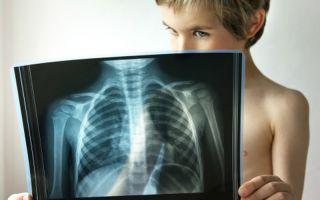 4 основных метода лечения пневмонии у детей