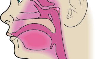 Как лечить синусит у детей — 9 симптомов и признаков