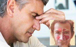 Как лечить синусит в домашних условиях? 11 эффективных методов