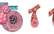 6 препаратов для лечения ХОБЛ