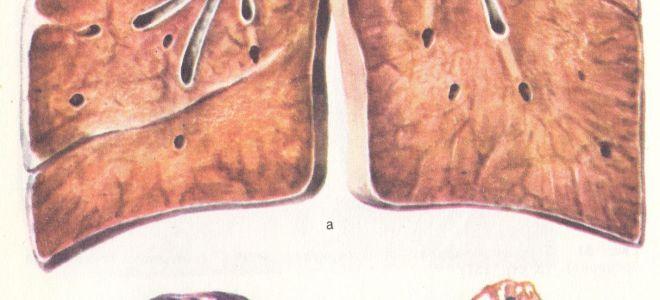 В чём опасность фиброзно-кавернозного туберкулёза лёгкого?