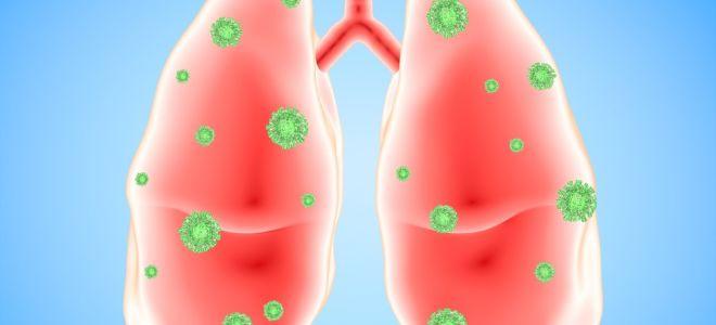 4 вида воспаления лёгких — как не заболеть?