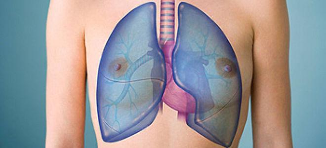 7 видов фиброза лёгких — пневмофиброз самый опасный из них