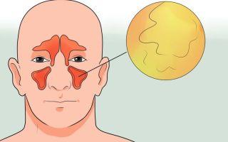 В чем разница синусита и гайморита