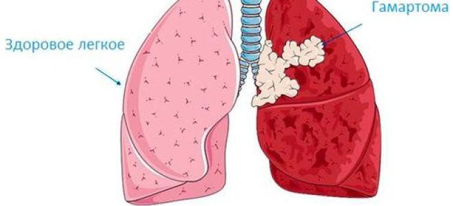 Учёные до сих пор не выяснили причины появления гамартомы лёгких