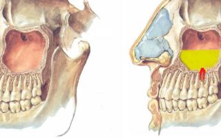 9 причин верхнечелюстного синусита — что это такое и как лечить?