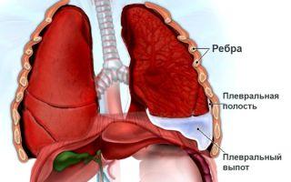 Возникновение гидроторакса легких при раке, что делать?