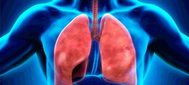 4 формы пневмонии и классификация по этиологии