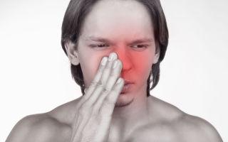 Бактериальный синусит  — 6 видов и форм, симптомы и лечение