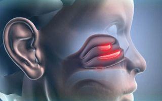 Полипозный синусит — причины, симптомы и лечение