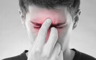 Что такое гнойный синусит — 3 вида заболевания и лечение