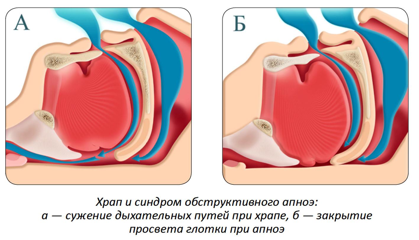 как выглядит апноэ