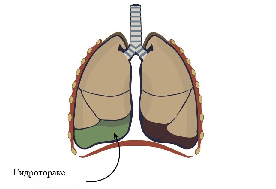 Лечение гидроторакса при сердечной недостаточности