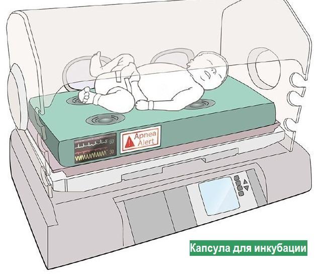 икубационная камера для детей