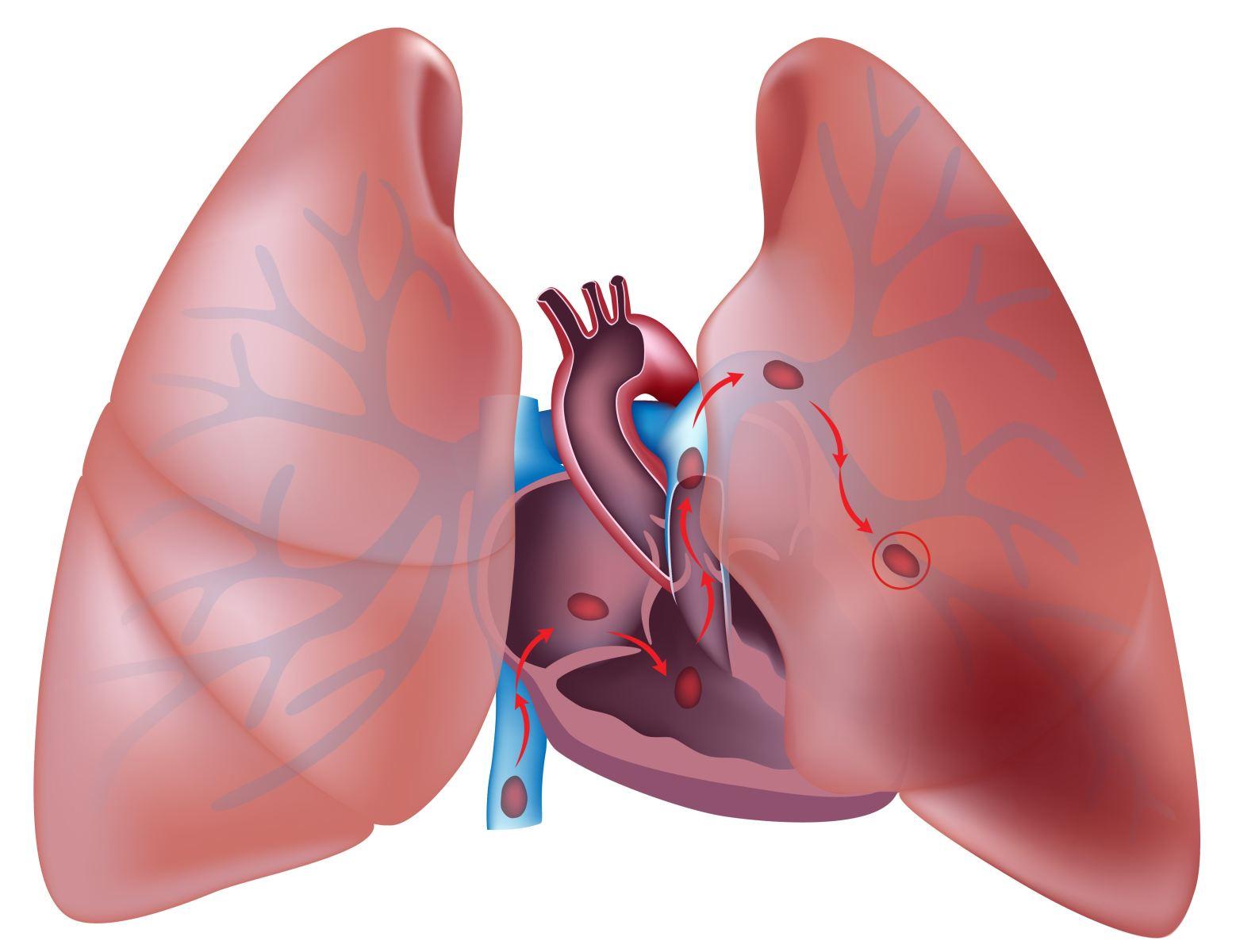 Геморрагический инфаркт легкого микропрепарат описание