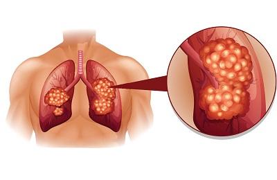 Лечение рака легких у женщин