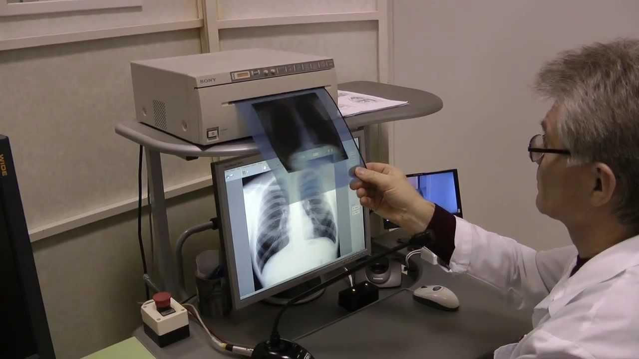 Анализ крови пцр на туберкулез легких