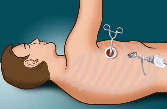 Как вывести жидкость из легких при сердечной недостаточности -