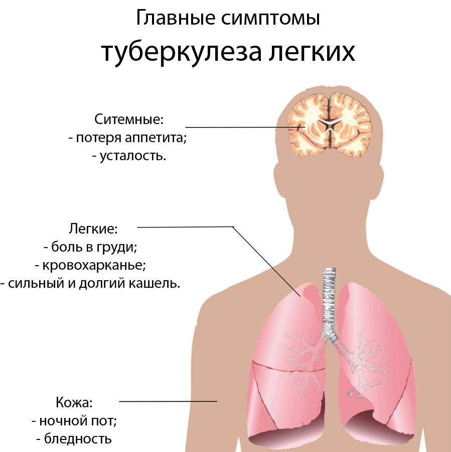 Может ли туберкулез протекать без симптомов