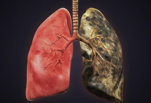 Приступы удушья при раке легких