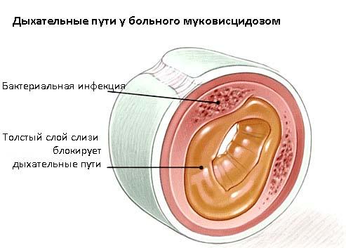 умеренный фиброз