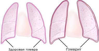 Жидкость в легких плеврит при туберкулезе