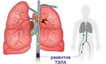 Тромбоэмболия легочной артерии - 3 причины, симптомы и лечение