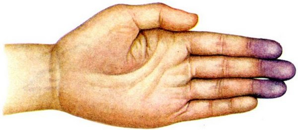 Линейный фиброз язычковых сегментов левого легкого
