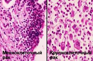 Рак легких – признаки, симптомы, стадии и лечение рака легких, прогноз заболевания