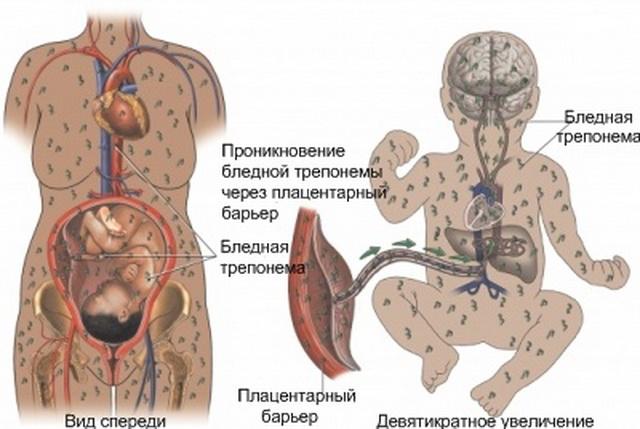 Пневмония у новорожденного ребенка причины и последствия