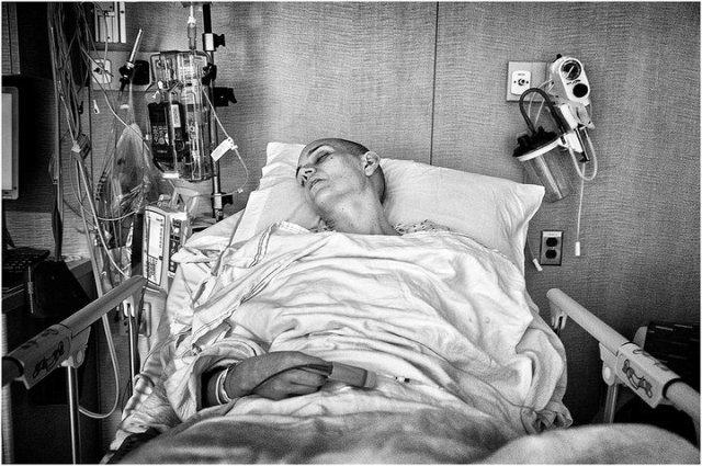 Сколько живут с раком легких 4 стадии
