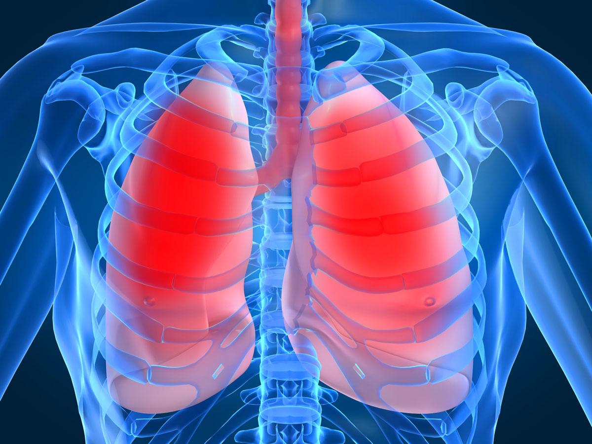 Первые симптомы при воспалении легких у взрослых